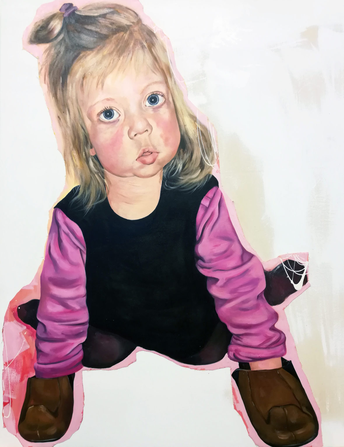William syndrome girl