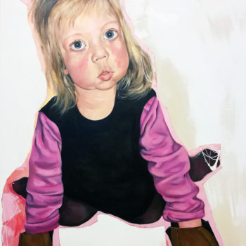 Name of the work: William syndrome girl