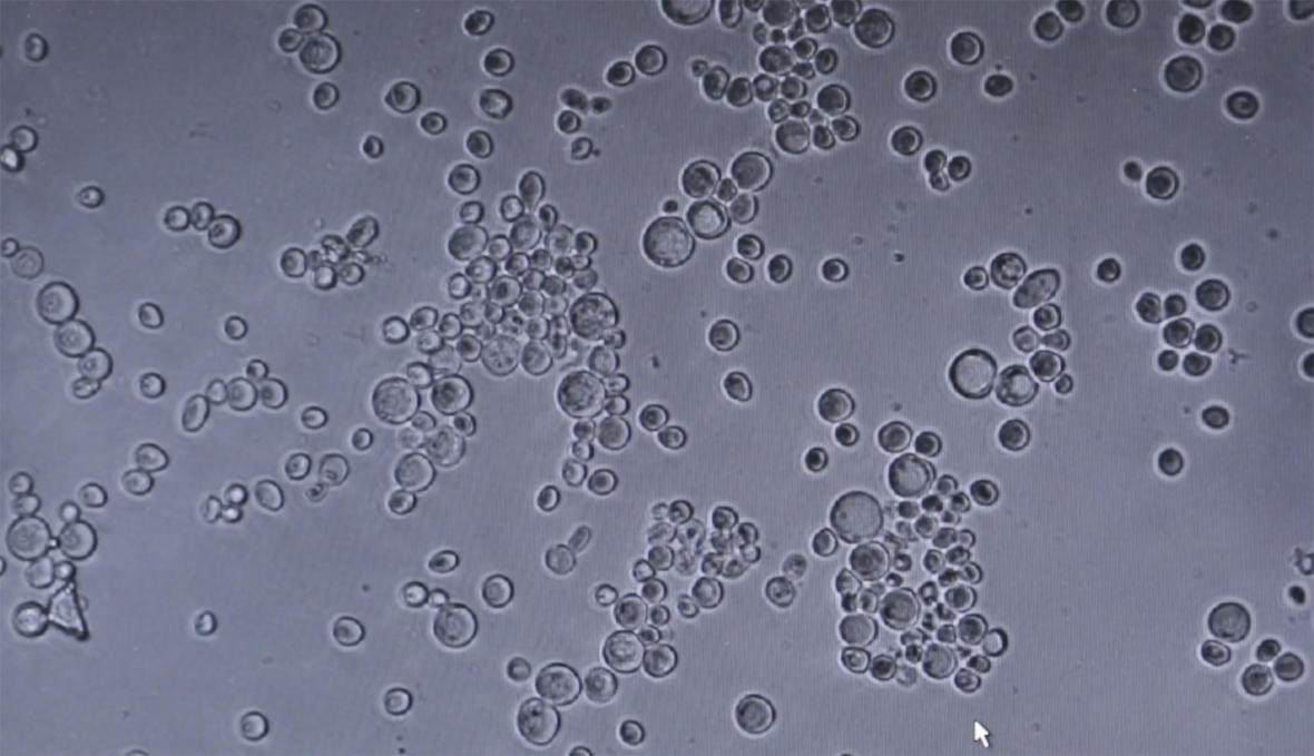 Hiivasolut / Yeast Cells -video