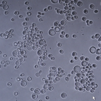 Teoksen nimi: Hiivasolut / Yeast Cells -video